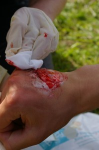 Outdoor First Aid Hand Injury